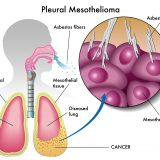Mesothelioma Action Day 3 July 2015
