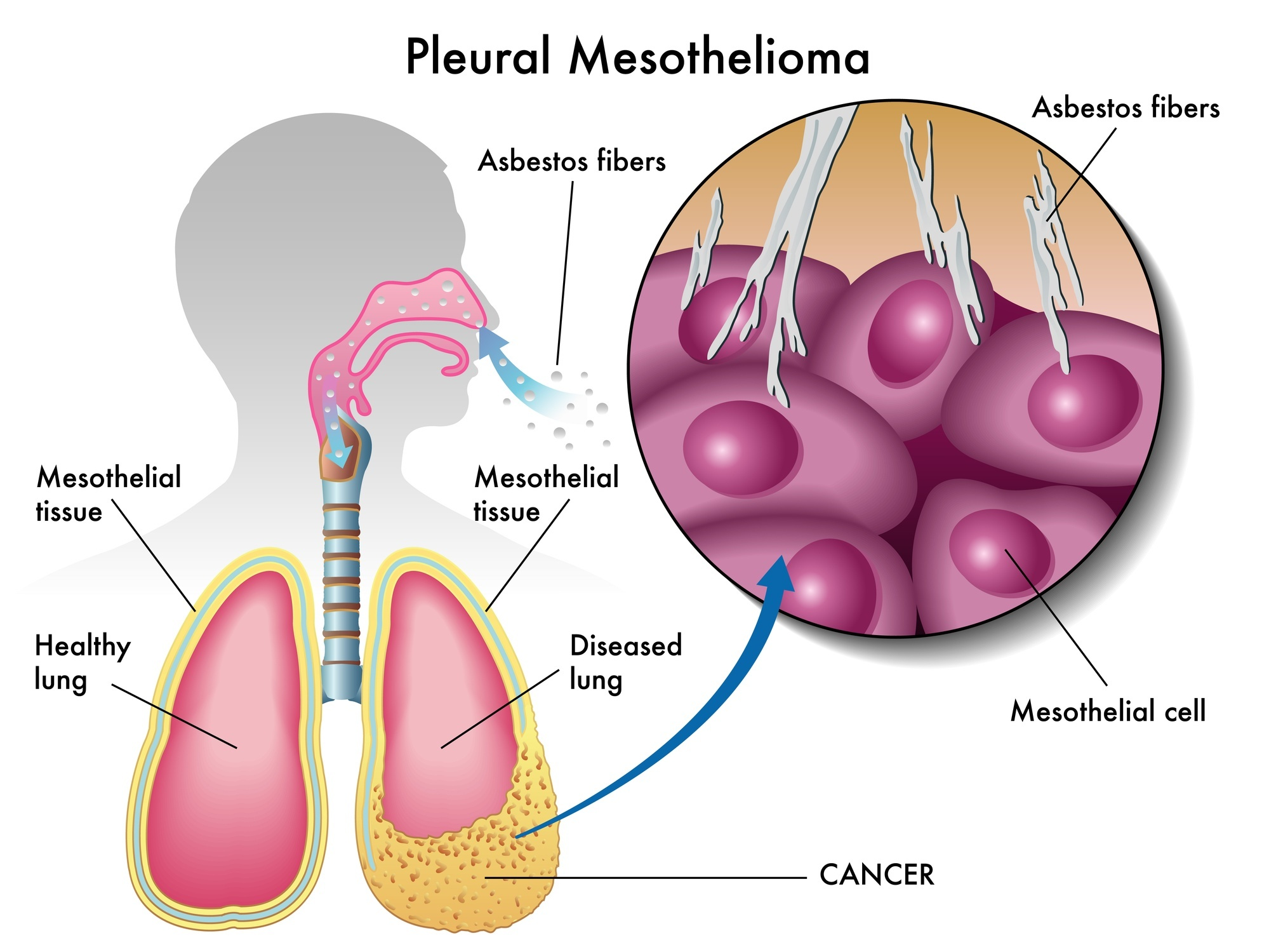 Mesothelioma Advice Questions And Solutions